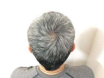 白髪染めする前の頭